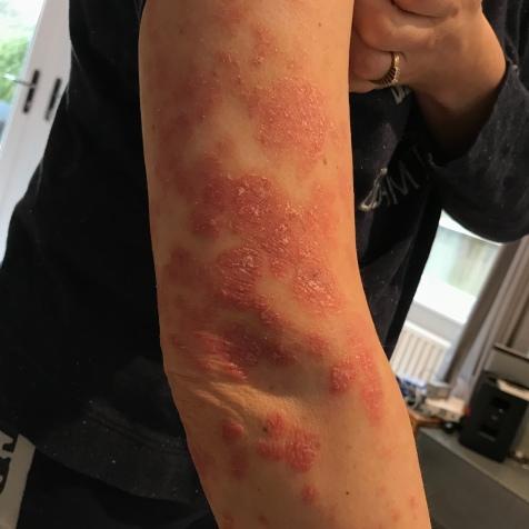 Arm psoriasis