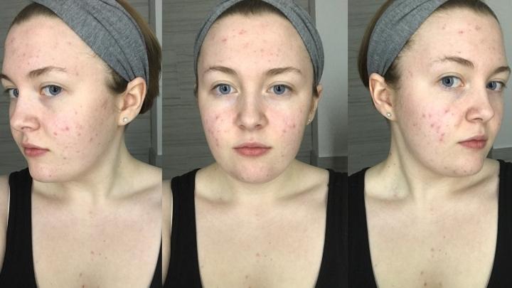 My skin at the start