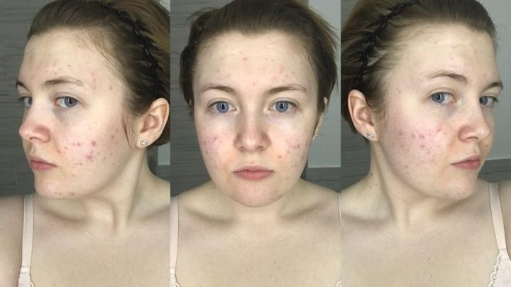 My skin after la roche