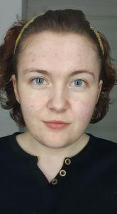 Skin February
